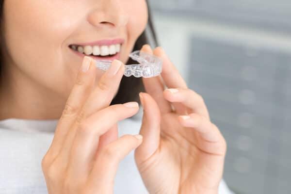 Quale apparecchio scegliere per raddrizzare i denti?